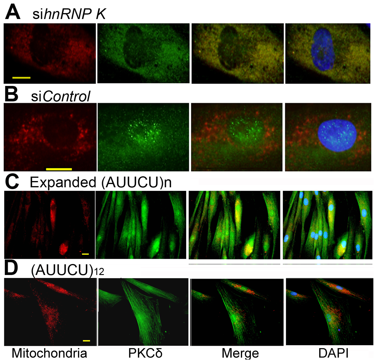 Targeted inactivation of <i>hnRNP K</i> in normal fibroblasts or expression of expanded AUUCU-RNA results in mitochondrial localization of PKCδ.
