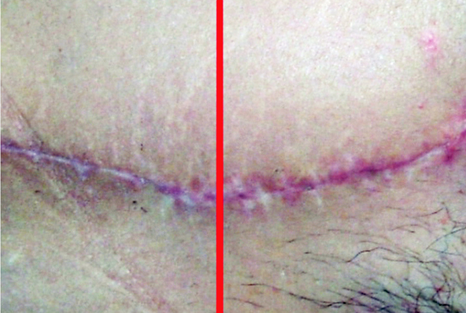 Fig. 3. Three months after tummy tuck: left side part of the wound treated with the new gel, right side control