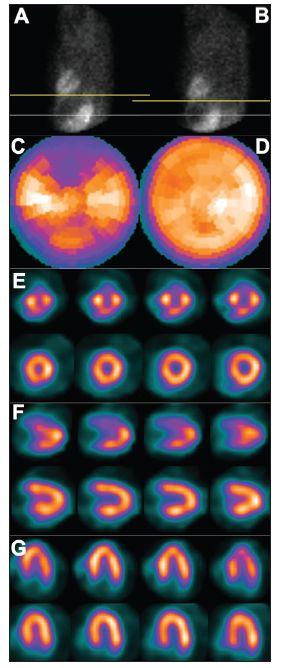 Vertikální pohyb srdce v průběhu snímání – dva po sobě jdou snímky tomografického záznamu (A – před pohybem, B – po pohybu), žlutá čára vyznačuje rozsah pohybu. Pohyb pacienta v průběhu snímání vede k arteficiálním defektům perfuze – zobrazení na polární mapě (C) a vybraných tomografických řezech (horní řady E – SA, F – VLA, G – HLA). U opakované studie, již bez pohybu pacienta, jsou defekty perfuze výrazně menší – zobrazení na polární mapě (D) a vybraných tomografických řezech (dolní řady E – SA, F – VLA, G – HLA).