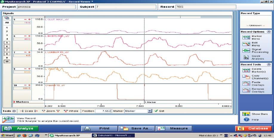 Poly-EMG záznam končetiny s protézou při úderu paty – podkolenní protéza typu 1 (statatické chodidlo) – rychlost chůze 52 dvojkroků/min. Legenda: L GLUT. MAX. m. gluteus maximus 1. sin L BICEPS FEM m. biceps femoris 1. sin L LUMBARES ES mm. erectores spinae 1. sin L VMO m. vastus medialis 1. sin