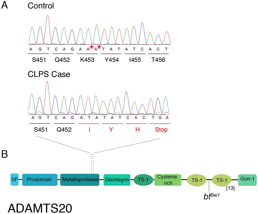 Characterization of <i>ADAMTS20</i> mutation in NSDTRs.