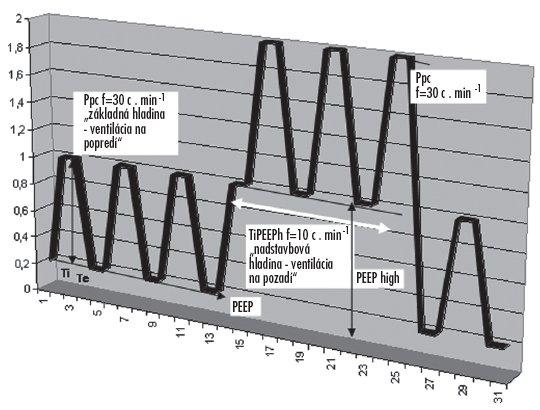 Schematické znázornenie tlakovej krivky pri aplikácii trojhladinovej ventilácie pľúc Základný ventilačný režim (PCV) s frekvenciou 30 d.min-1, a nadstavbová hladina ventilácie na pozadí s frekvenciou 10 d.min-1, tvorená tlakovou hladinou PEEPh / PEEP.