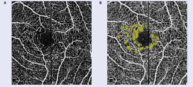 Angio OCT ľavé oko: a) rozšírenie interkapilárnych priestorov juxtafoveálne, b) zvýraznenie rozšírených interkapilárnych priestorov softwérovou úpravou