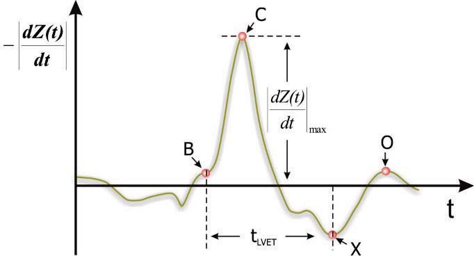 Fig. 2: Temporal derivative (ICG) of the measured bioimpedance with its characteristic points.