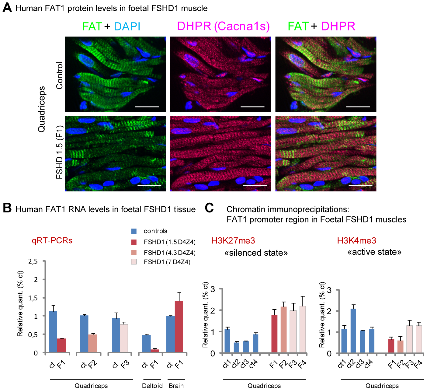 FAT1 protein and RNA levels are mis-regulated in human foetal FSHD tissues.