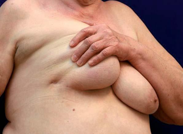 Karcinom v oblasti submamární rýhy. Nádory umístěné v periferii prsu nemusí být zachyceny na běžných mamografi ckých projekcích a mohou zůstávat dlouho nediagnostikovány.