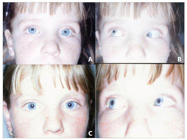 """<b>Léčba betamethasonem.</b> A – akutní Brownův syndrom vlevo u fixujícího oka, sekundární hypertropie vpravo, B – syndrom """"cvaknutí"""" horního šikmého svalu vlevo, C – paralelní postavení očí po aplikaci léku, D – následné vyrovnání motility v addukci vlevo"""