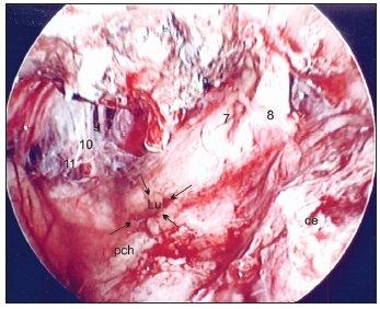 Translabyrintná endoskopia po odstránení meningeomu veľkosti 3,5 cm vľavo. Legenda: ce – cerebellum, pch – plexus chorioideus, Lu – foramen Luschkae, 8 – n. cochleovestibularis, 7 – n. facialis, 9 – n. glossopharyngeus, 10 – n. vagus, 11 – n. accessorius Šípky ukazujú na foramen Luschkae.
