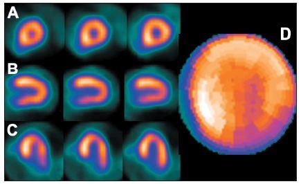 """Obraz ložiskového zvýšení radioaktivity označovaný termínem """"hot spot"""" – v tomto případě v oblasti septa (hypertrofická kardiomyopatie) (A – SA, B – VLA, C – HLA). Při kvantitativní analýze (na polární mapě – D) se zbylá část myokardu jeví jako méně prokrvená (zde zejména inferolaterálně)."""