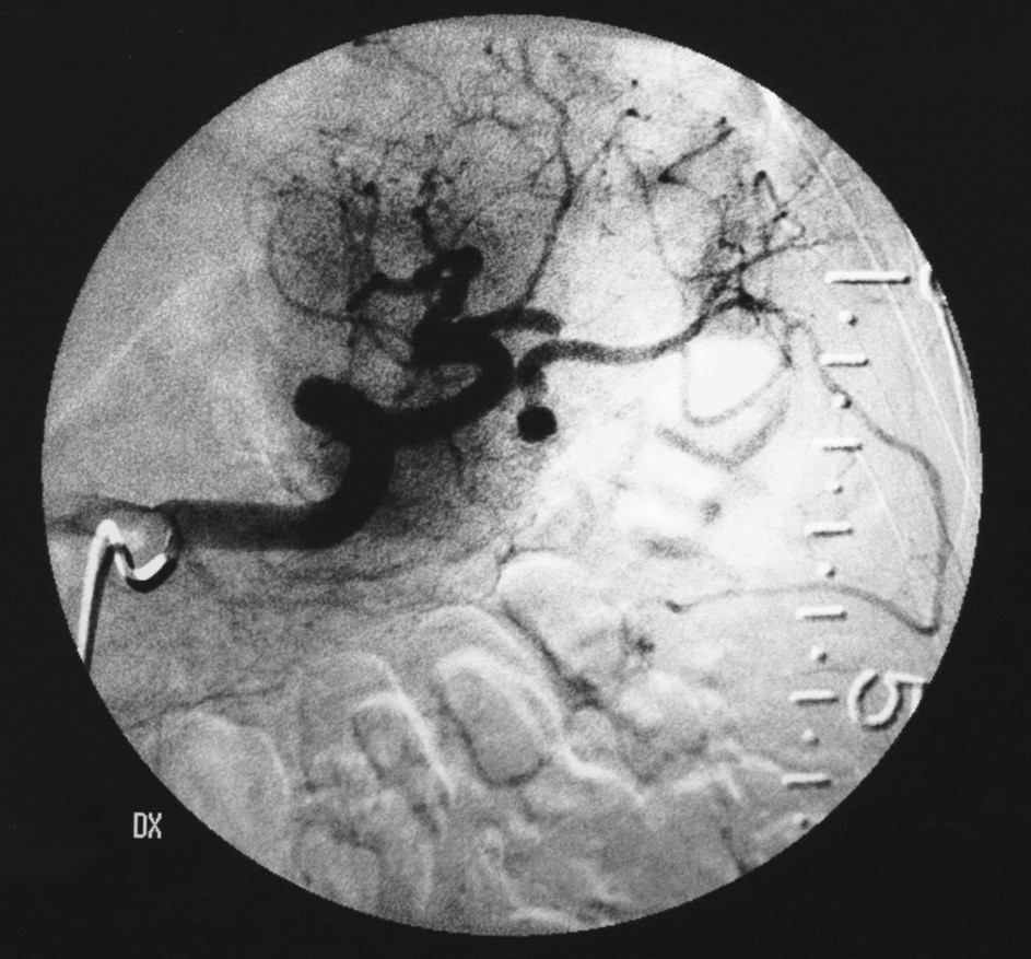 Selektívna angiografia arteria lienalis s drobnou vakovitou aneuryzmou s priemerom 5 mm s úzkym krčkom Fig. 2. Selective angiography of arteria lienalis, with a minor sac-like aneurysm, 5mm in a diameter, with a narrow neck