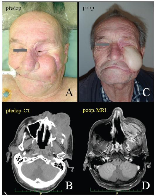 Příklad rekonstrukce postresekčního defektu lalokem z anterolaterálního stehna. <em>Legenda - A: předoperační klinický nález tumoru infiltrujícího levou tvář a oblast exenterované očnice; B: předoperační CT vyšetření recidivy adenoidně cystického karcinomu – tumor postihoval čelistní dutinu, čichový labyrint, exenterovanou očnici, fossa pterygoplataina, infratemporalis a temporalis a přilehlé měkké tkáně v oblasti tváře; C: pooperační nález 3 měsíce po rekonstrukci; D: pooperační MRI vyšetření 3 měsíce po výkonu</em>