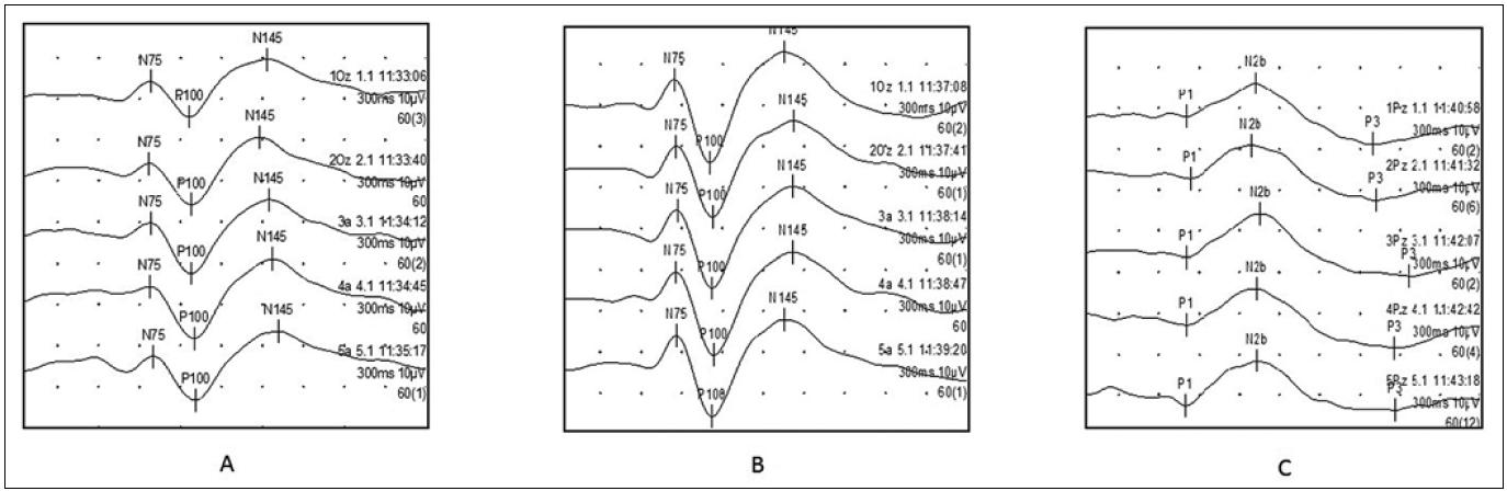 Ukázka vyšetření VEP v pěti po sobě jdoucích blocích o 60 odpovědích (pro hodnocení habituace): a) vysokokontrastní PR-VEPs (ze svodu Oz), b) nízkokontrastní PR-VEPs (ze svodu Oz), c) motion-onset VEPs (ze svodu Pz). Polarita – negativní nahoru. VEPs registrované v prvním bloku jsou řazeny v horní části skupiny, odpověď z posledního bloku je pak v dolní části.