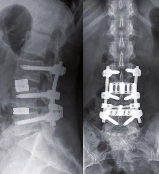 Nález na RTG jeden rok po operaci