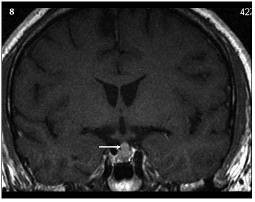 Kontrolní MR vyšetření za 9 měsíců (T1 vážený MR obraz po aplikaci kontrastní látky – v koronární rovině), došlo prokazatelně k ložiskové infiltraci stopky hypofýzy a původní infiltrát v oblasti neurohypofýzy se mění, je jakoby lehce zmenšený. Čili ložisková infiltrace stopky se vytvořila v období mezi vyšetřeními.