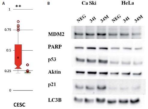 A) Analýza metylací promotoru miR-34c s využitím online databáze MetHC. Intenzita metylace promotoru pro miR-34c byla porovnávána mezi vzorky pocházejícími ze souboru CESC a zdravými kontrolami (vlevo); **p < 0,005. B) Imunochemická analýza změn exprese vybraných proteinů po transfekci buněk Ca Ski a HeLa inhibitorem miR-34c (34I) a miR-34c mimikujícími oligonukleotidy (34M).