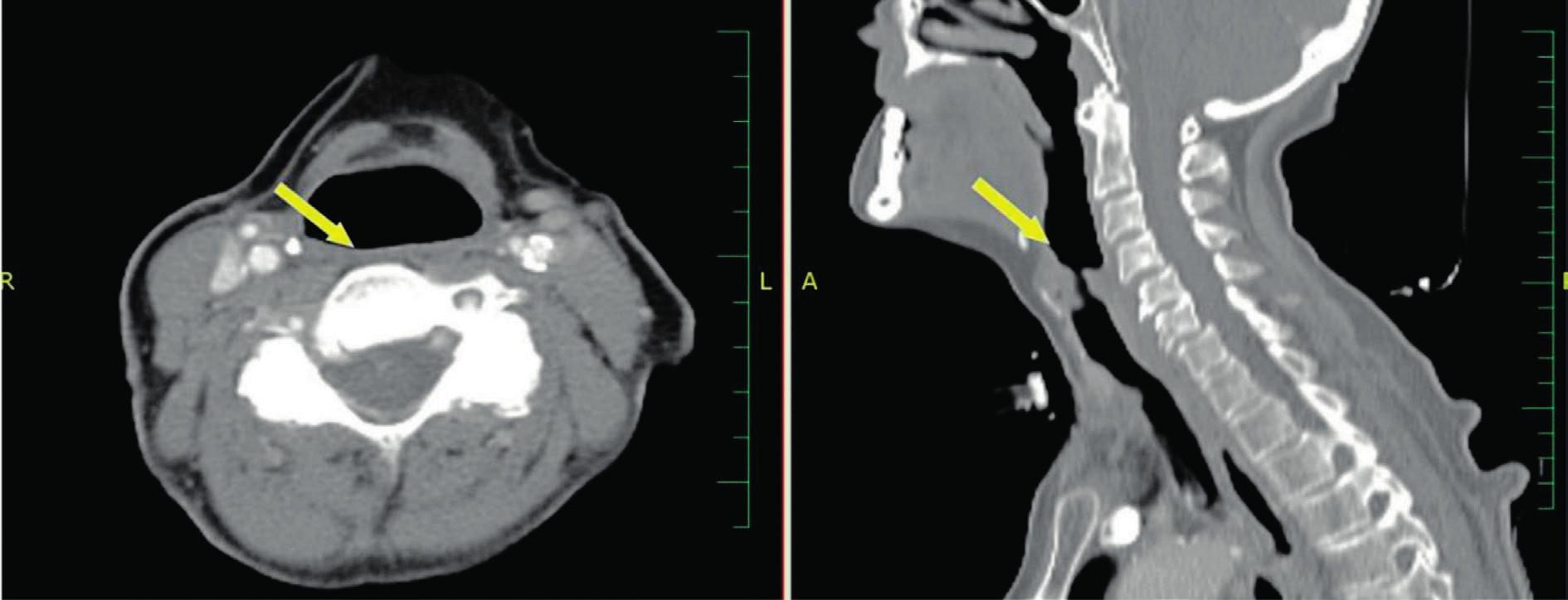 CT snímky s kontrastem - šipka ukazuje na oblast supraglotis 1 rok po TORS.