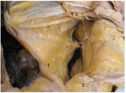 Preperitoneální tuk