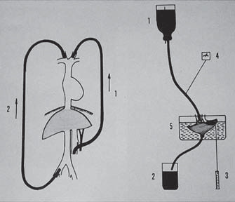 Schéma žilní drenáže a perfuze jater.
