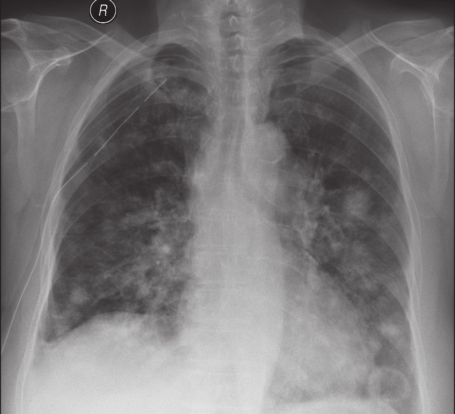 RTG plic – mnohočetné metastázy angiosarkomu Fig. 2. Chest X-ray – multifocal metastases of angiosarcoma