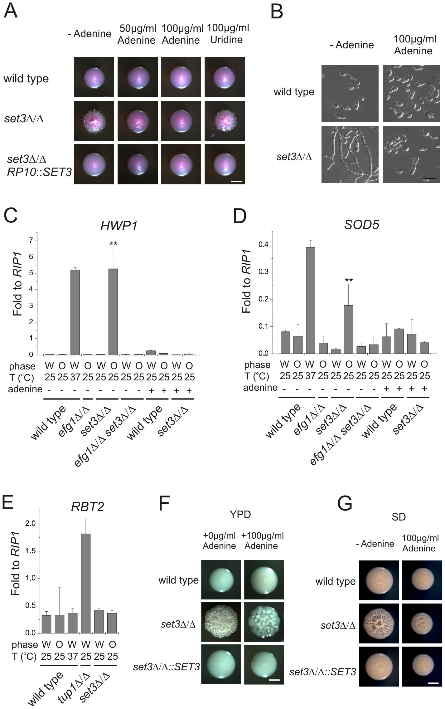 Adenine supplementation suppresses hyperfilamentation of <i>set3</i>Δ/Δ mutants.