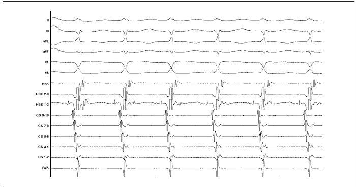 Záznam typické AVNRT v průběhu EFV. Elektrický impulz se šíří pomalou dráhou antegrádně a rychlou dráhou retrográdně. Je zřejmá prakticky současná síňová a komorová aktivace (popis záznamu stejný jako u obr. 3).