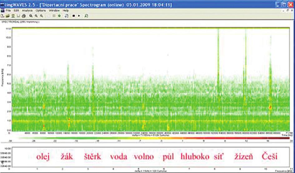 Sonogram slovní audiometrie, dekáda slov, SNR - 0 dB, WN dB.
