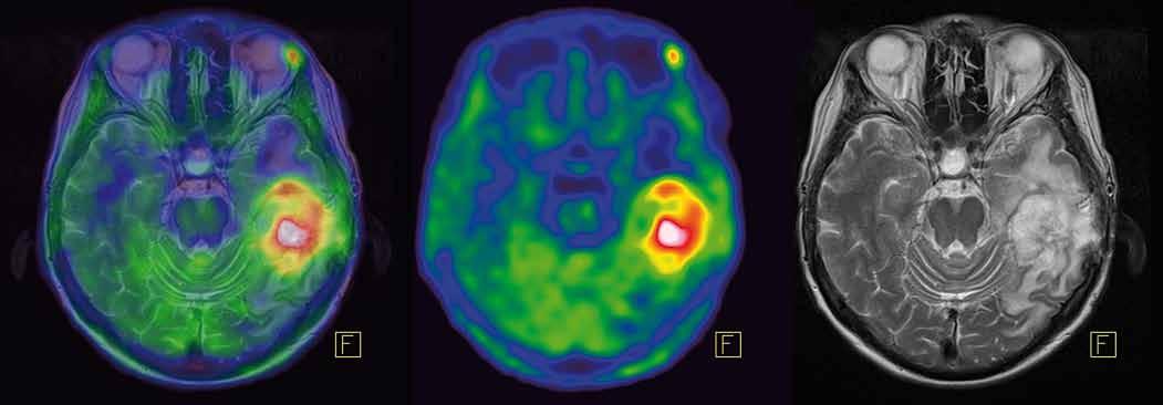 [<sup>11</sup>C]methionin-PET a fúze s MRI mozku. Recidiva gliomu temporálně vlevo vykazuje vysokou akumulaci [<sup>11</sup>C]methioninu.