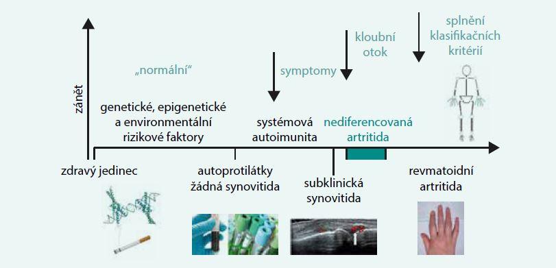 Schéma. Jednotlivé fáze vývoje revmatoidní artritidy. Upraveno podle [17]