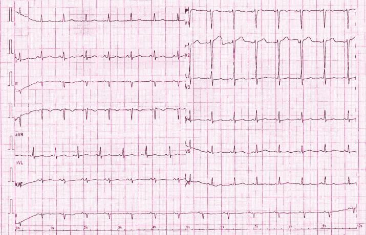 EKG u pacientky 3. den po porodu před propuštěním z Interní kardiologické kliniky: fyziologická křivka sinusového rytmu, TF 85/ min s normálními převodními parametry (PQ 0,14 ms, QRS 0,08 ms), osa 0°, přechodová zóna V3, zcela bez komorových arytmií.