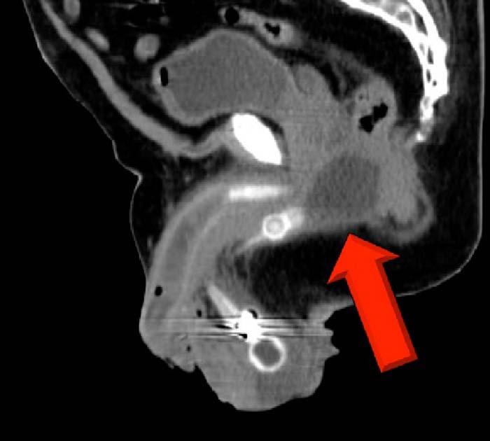 Selektivní CT zobrazení rezervoáru v oblasti perinea, viz červená šipka.