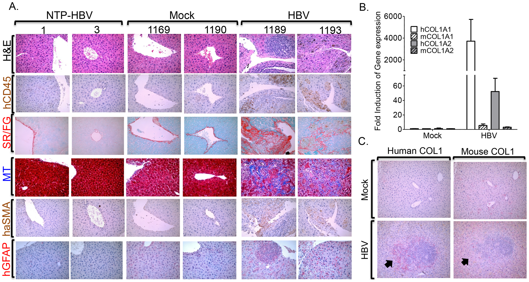 HBV infection induces chronic hepatitis and human liver fibrosis.