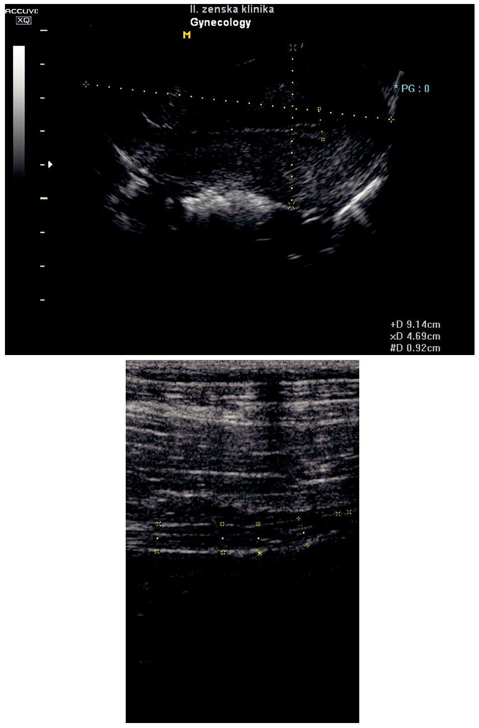a) USG uteru v I. trimestri gravidity,  b) USG apendixu bez zápalových zmien v I. trimestri gravidity Pic. 3 a) USG of the womb in the first trimester of gravidity, b) USG of the appendix without inflammatory changes in the first trimester of gestation