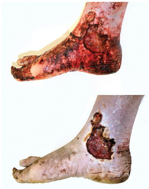Plošný chronický bércový vřed nad vnitřním kotníkem pravé nohy. Nahoře stav před omytím.