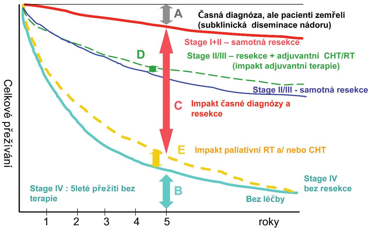 Komplexní analýza modelu celkového přežití dle stupně a dopadu léčebných modalit Graph 1: Comprehensive model analysis of overall survival according to the level and impact of treatment modalities