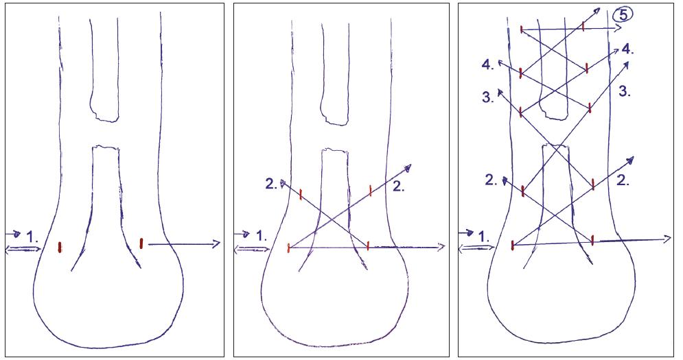 """Perkutánní technika – a) - zavedení drátu s vlákny do distálního pahýlu šlachy, b) """"zig-zag"""" metoda zakládání vláken, c) konečný stav"""