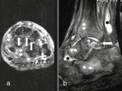 Tekutinová náplň kloubu, edém skeletu a měkkých tkání, subluxace