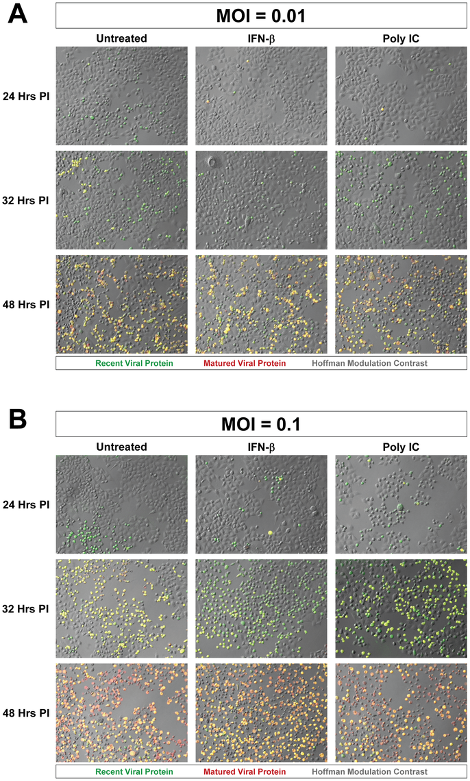 Progression of Timer-CVB3 infection in HeLa cells pretreated with IFN-β or Poly IC.
