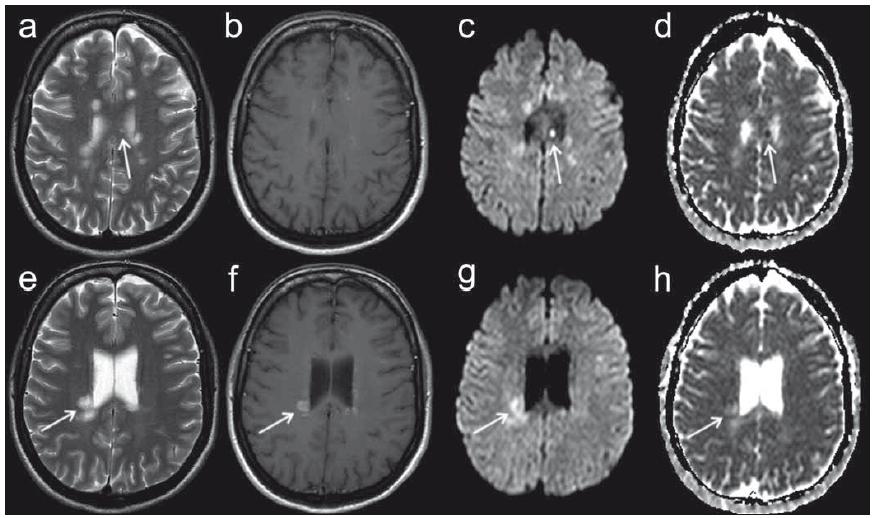 MR vyšetření pacientky ve věku 39 let s přibližně 8denní anamnézou parestezií končetin. Fig. 5. MRI examination in a 39-year-old female patient with approximately eight-day history of limb paraesthesia.
