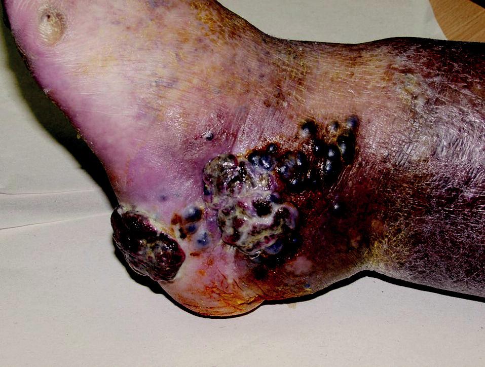 Primární melanom na patě a satelitní a intranzitní metastázy.