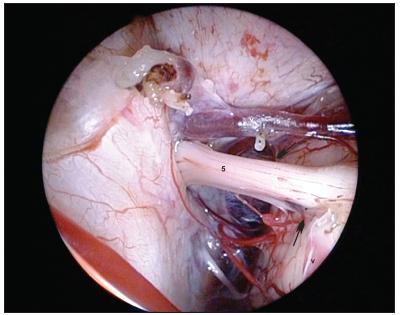 Ten istý pacient ako na obr. 5, 6. Endoskopický pohľad po koagulácii vény v konflikte, nervus trigeminus je úplne oslobodený, bez útlaku.
