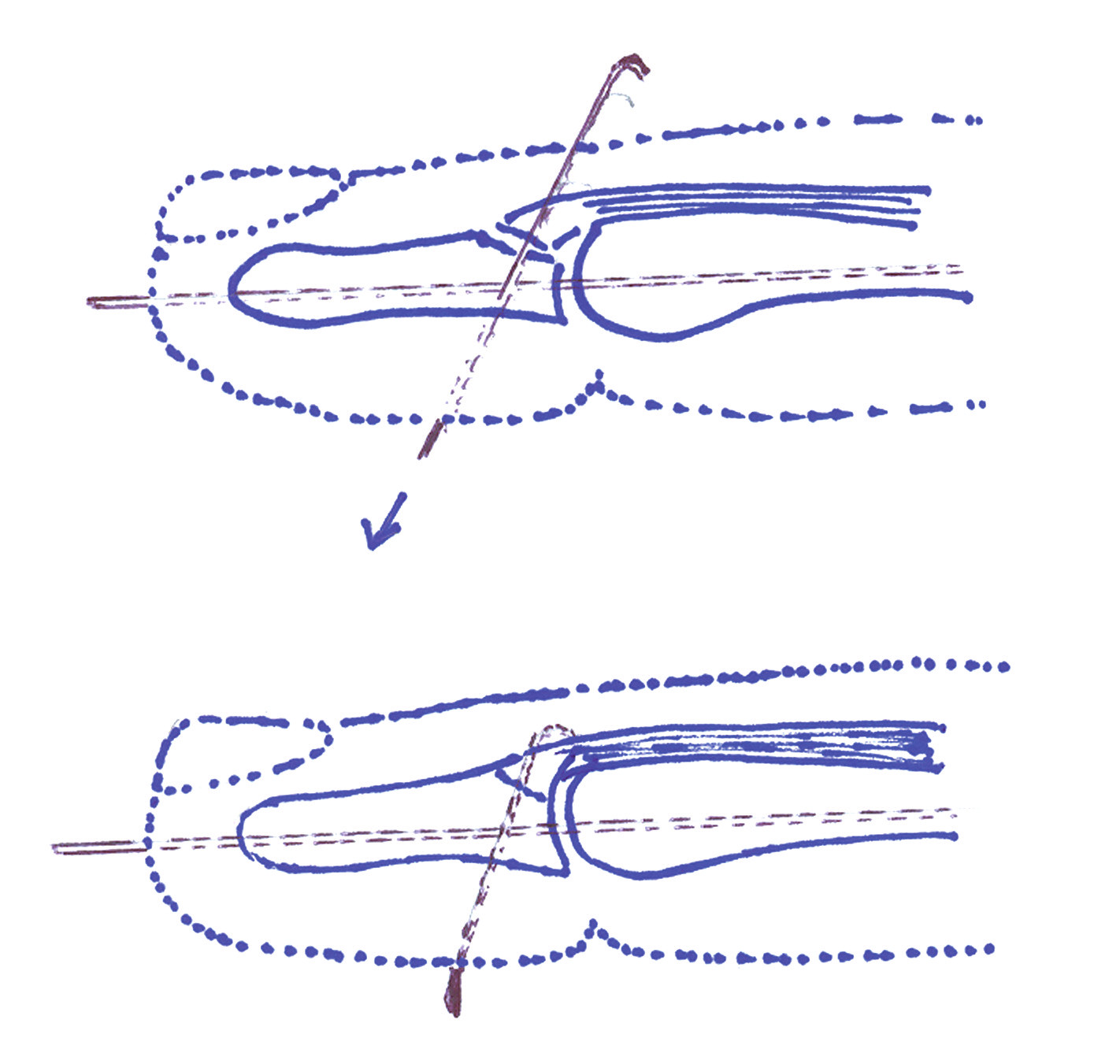 Technika podle Badii a Riana. Perkutánní fixace distálního článku v dorzální flexi. Následně je druhým K-drátem ohnutým do tvaru háčku perkutánně fixován odtržený fragment a palmárně zakrácen do úrovně kůže.
