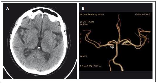 CT mozku při přijetí. Obr. 1A) Nativ. Obr. 1B) CT angiografie (Volume Rendering Technique). Fig. 1. Brain CT on admission Fig. 1A) Unenhanced. Fig. 1B) CT angiography (Volume Rendering Technique).