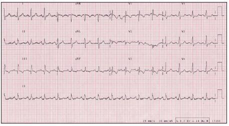 EKG z roku 2008, 4 mesiace po operácii, ustúpili známky preťaženia pravej komory srdca.