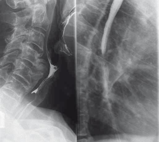 Polykací akt a RTG jícnu s nálezem přemosťujících osteofytů (kazuistika 1). Fig. 1. The act of swallowing and oesophageal X-ray findings with bridging osteophytes (a case report 1).