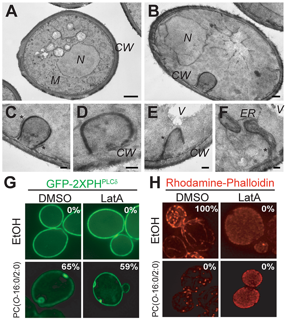 Characterization of PM changes in PC(<i>O</i>-16:0/2:0)-treated cells.