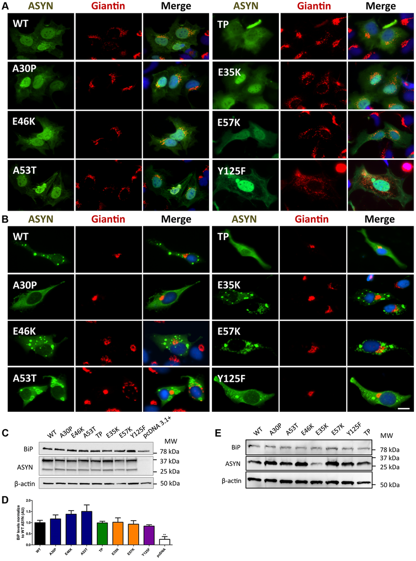A-B morphology analysis of Golgi apparatus.