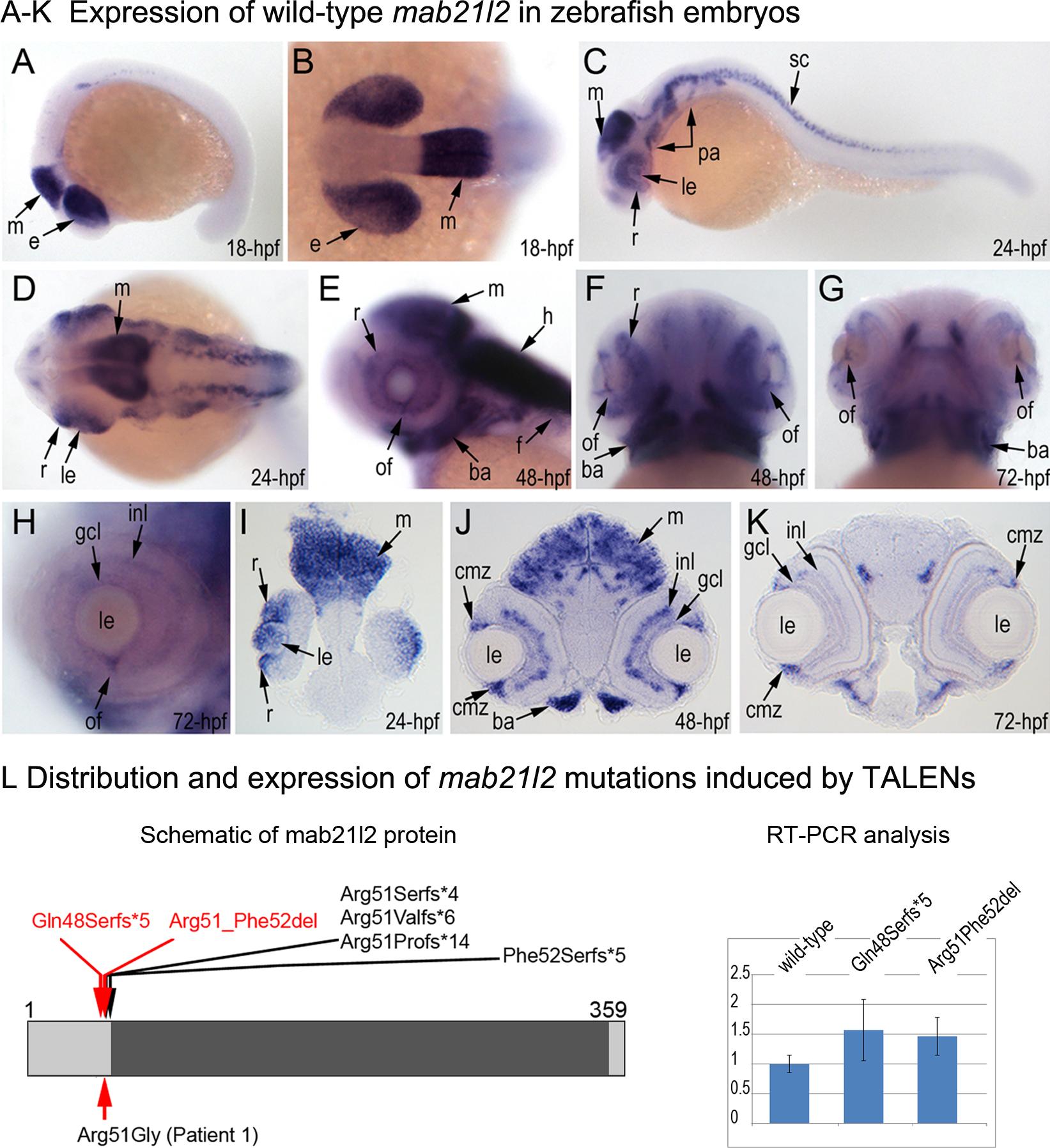 Expression and mutations of zebrafish <i>mab21l2</i>.