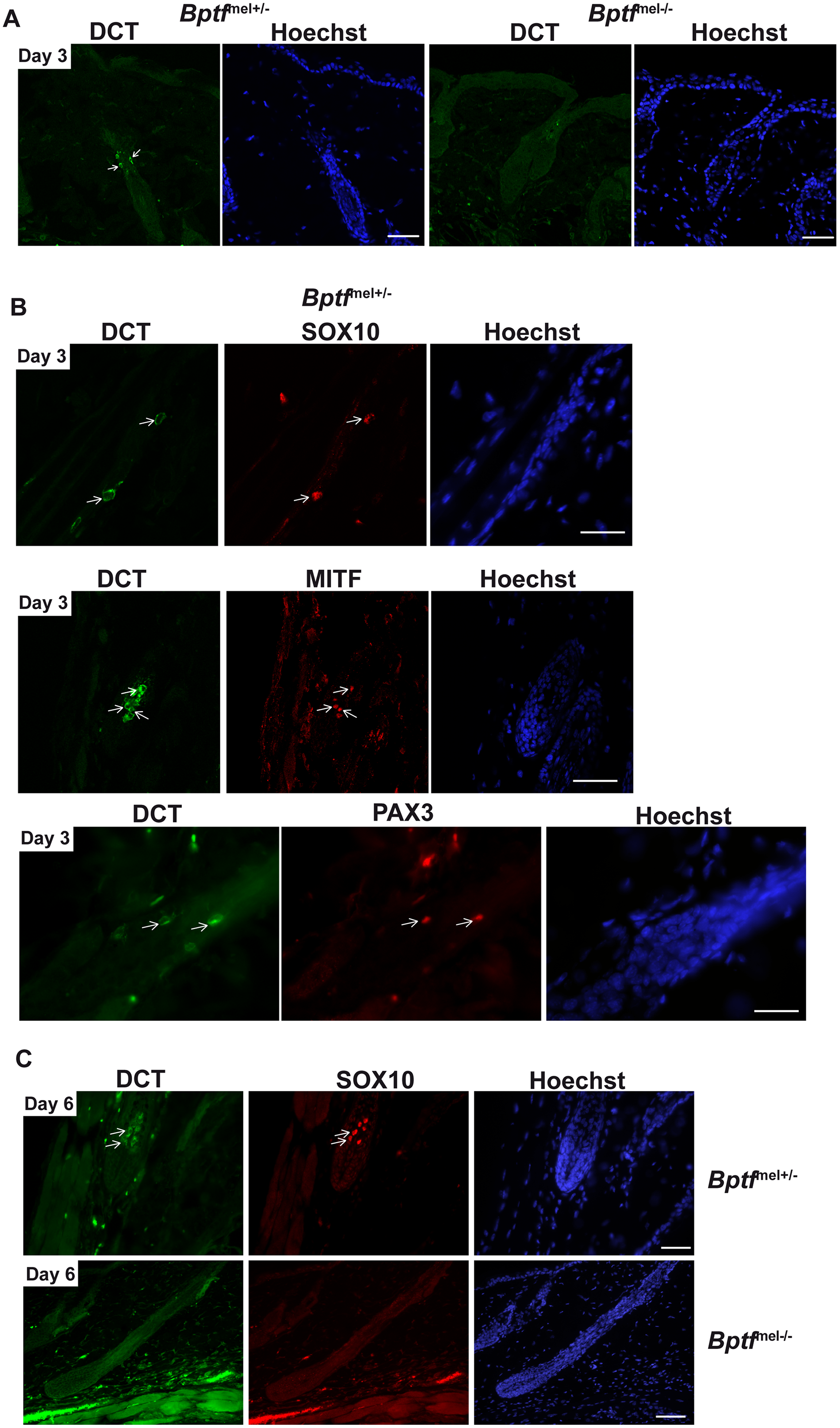 Bptf acts upstream of Mitf in differentiating adult melanocytes.