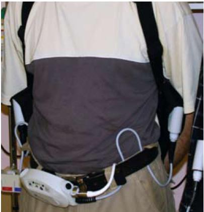 Obr. 2. Implantovateľný ľavokomorový podporný systém.