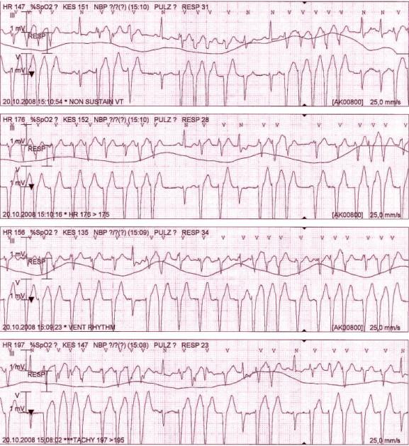 Záznam monitorace z 5svodového EKG během hospitalizace na jednotce intenzivní péče: kuplety a triplety komorových extrasystol až běhy nesetrvalé monomorfní komorové tachykardie, jen ojedinělé sinusové komplexy.